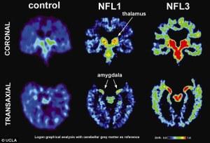 फुटबॉल खिलाड़ियों का दिमाग(Football players' brains)